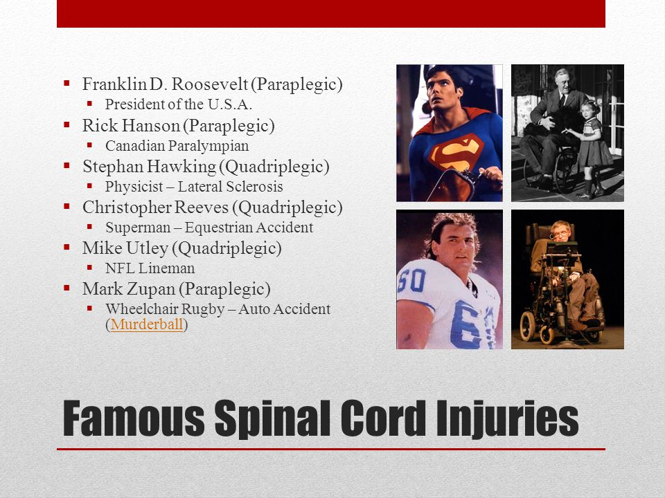 Famous Spinal Cord Injuries  Franklin D. Roosevelt (Paraplegic)  President of the U.S.A.  Rick Hanson (Paraplegic)  Canadian Paralympian  Stephan