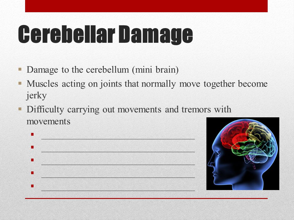 Cerebellar Damage  Damage to the cerebellum (mini brain)  Muscles acting on joints that normally move together become jerky  Difficulty carrying out movements and tremors with movements  __________________________________