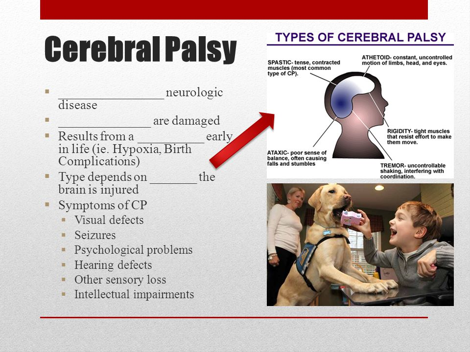Cerebral Palsy  ________________ neurologic disease  ______________ are damaged  Results from a __________ early in life (ie. Hypoxia, Birth Compli