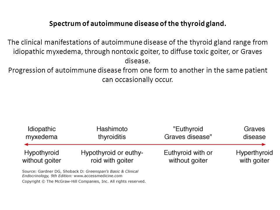 Spectrum of autoimmune disease of the thyroid gland. The clinical manifestations of autoimmune disease of the thyroid gland range from idiopathic myxe