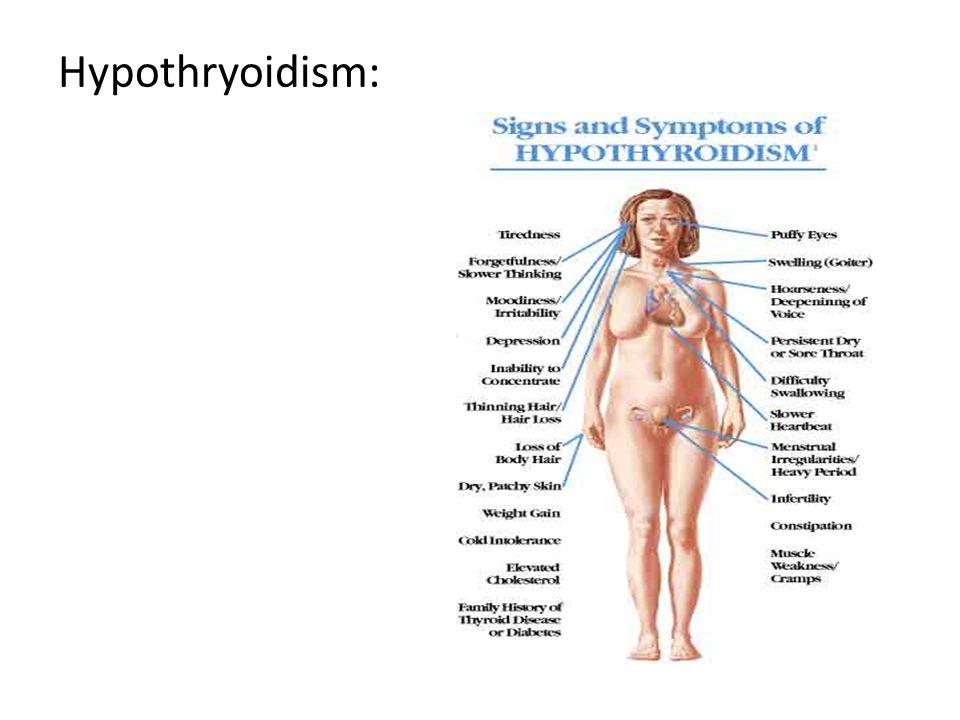 Hypothryoidism: