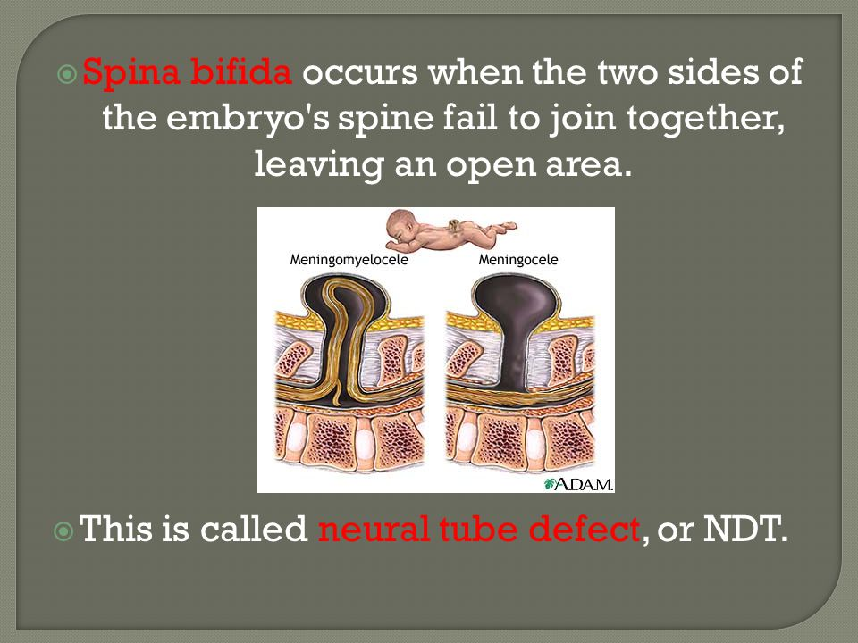  A neural tube defect (NTD) is a birth defect that occurs when the spine, the brain, or the bone and skin that protect them do not develop properly.