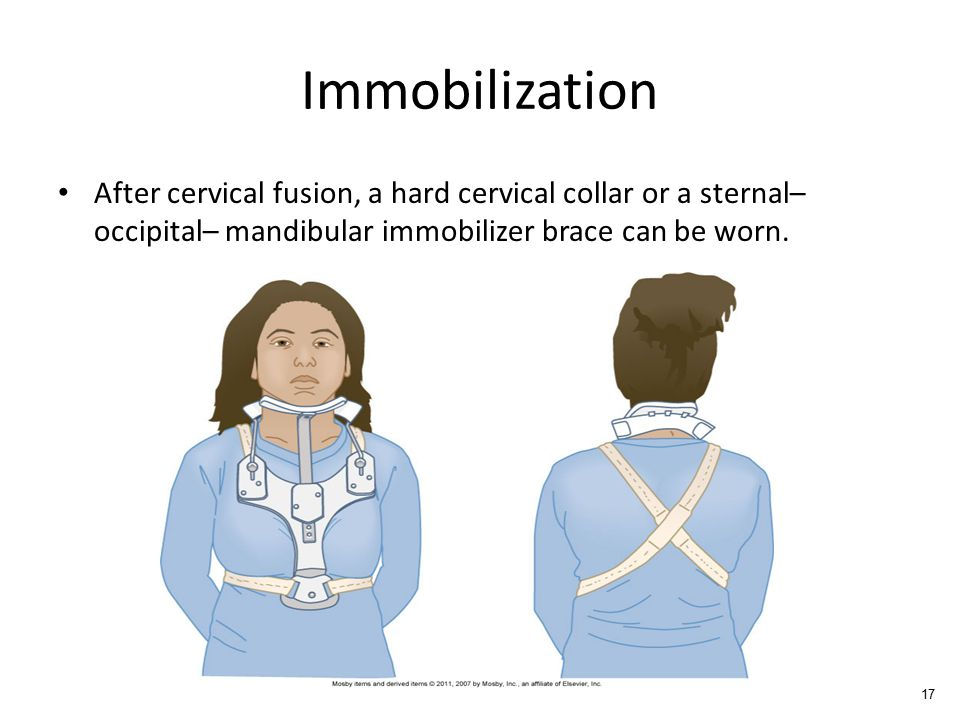 Immobilization After cervical fusion, a hard cervical collar or a sternal– occipital– mandibular immobilizer brace can be worn.