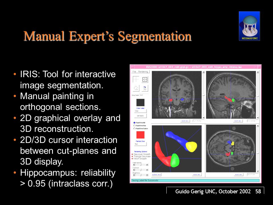 Guido Gerig UNC, October 2002 58 IRIS: Tool for interactive image segmentation. Manual painting in orthogonal sections. 2D graphical overlay and 3D re