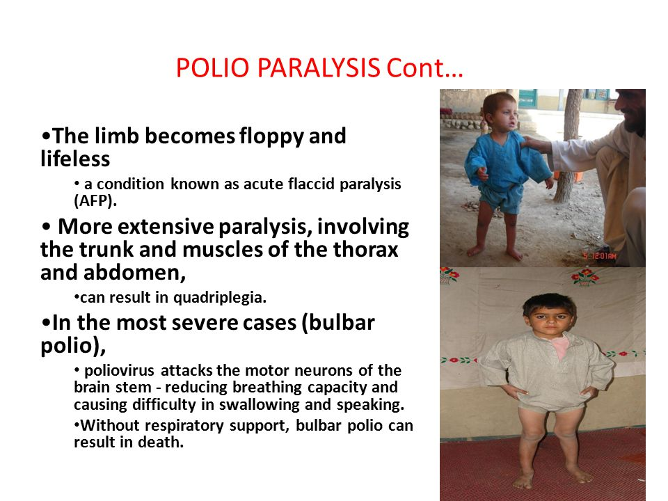 POLIO PARALYSIS Cont… The limb becomes floppy and lifeless a condition known as acute flaccid paralysis (AFP).