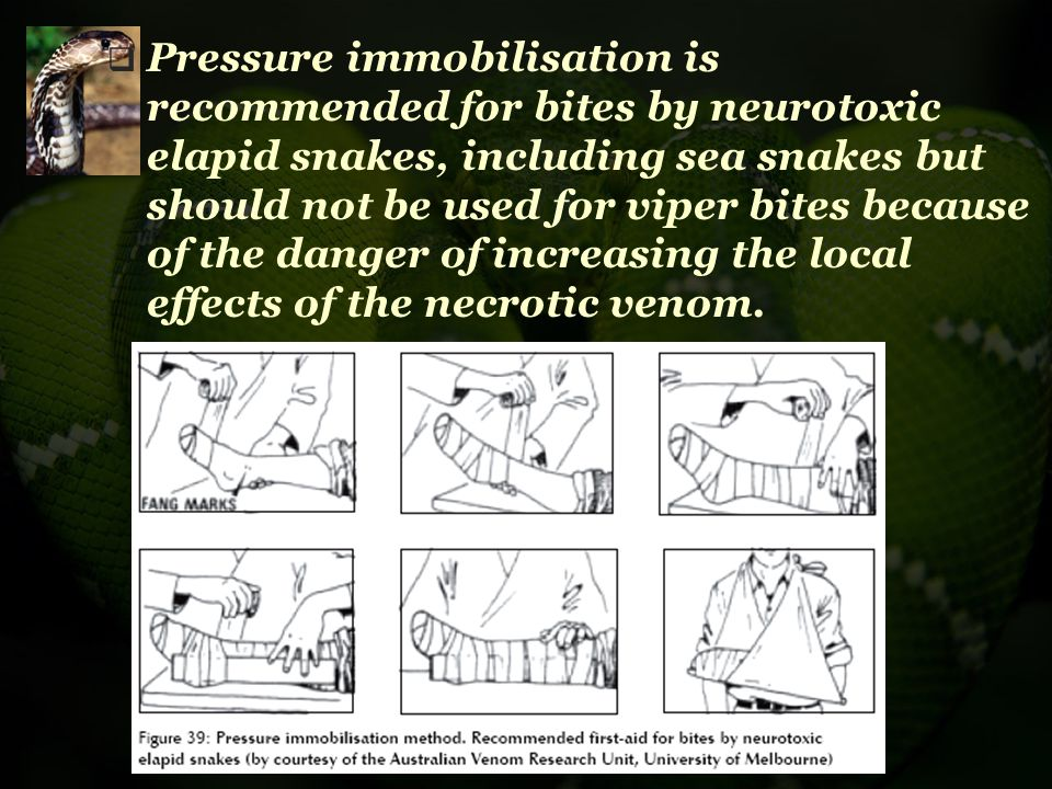  Pressure immobilisation is recommended for bites by neurotoxic elapid snakes, including sea snakes but should not be used for viper bites because of