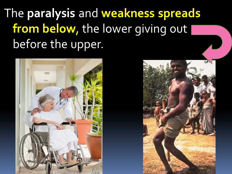 The paralysis and weakness spreads from below, the lower giving out before the upper.