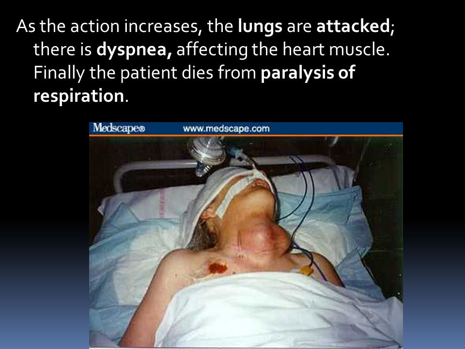 As the action increases, the lungs are attacked; there is dyspnea, affecting the heart muscle.