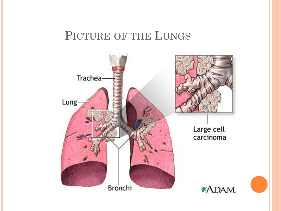 Tumors of the diaphragm are not associated with any characteristic symptom.
