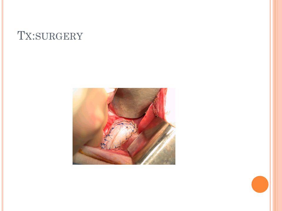 T X : SURGERY