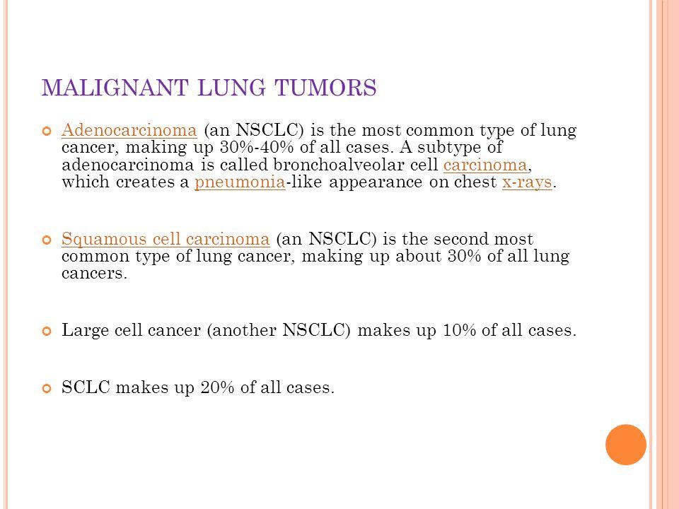 B ENIGN LUNG TUMORS bronchial adenomas hamartomas group of uncommon neoplasms (eg, chondromas, fibromas, lipomas, leiomyomas, hemangiomas, teratomas, pseudolymphomas, endometriosis).