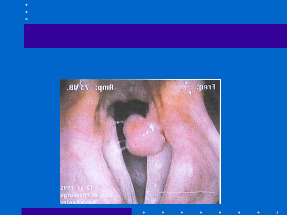 Vocal cord granulomas LPR Intubation Treat medically