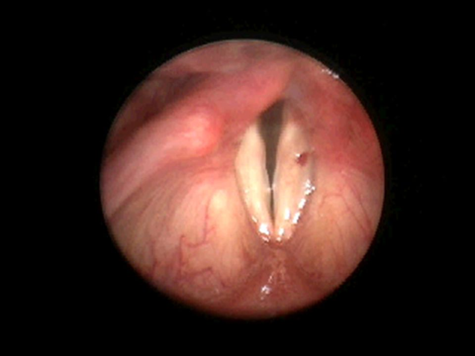 Vocal Cord Nodules 2