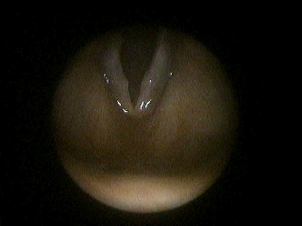 Vocal Cord Nodules 2
