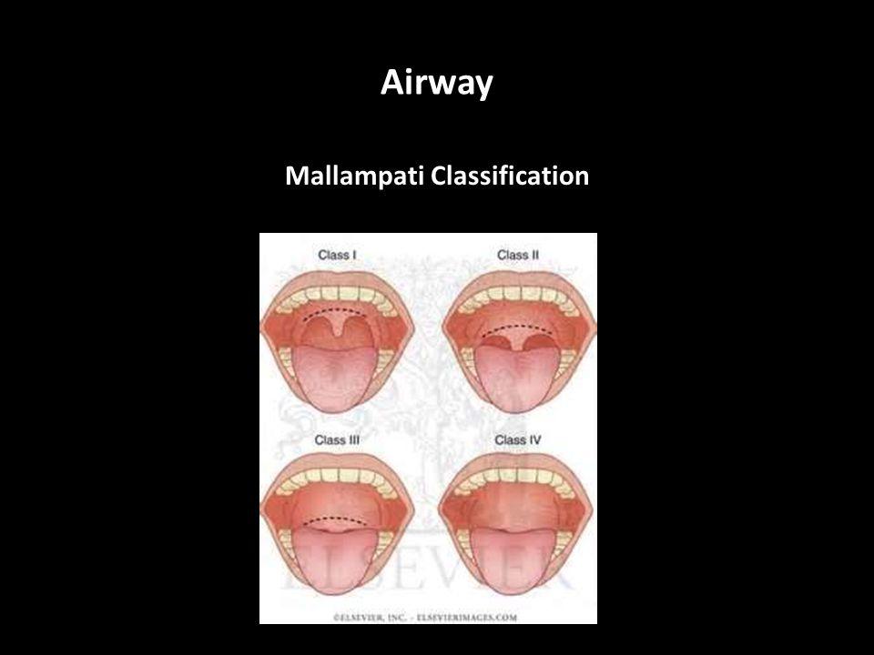 Airway Mallampati Classification