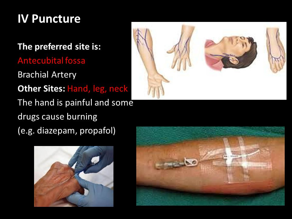 IV Puncture The preferred site is: Antecubital fossa Brachial Artery Other Sites: Hand, leg, neck The hand is painful and some drugs cause burning (e.