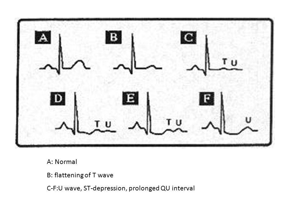 A: Normal B: flattening of T wave C-F:U wave, ST-depression, prolonged QU interval