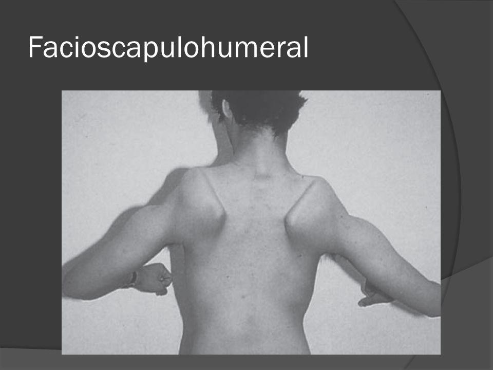 Facioscapulohumeral