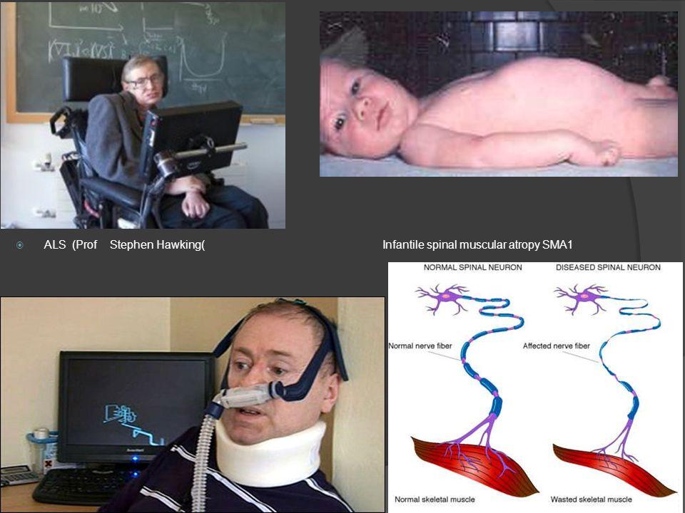  ALS (Prof Stephen Hawking( Infantile spinal muscular atropy SMA1