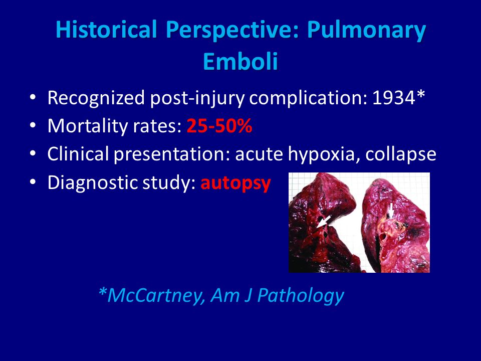 Historical Perspective: Pulmonary Emboli Recognized post-injury complication: 1934* Mortality rates: 25-50% Clinical presentation: acute hypoxia, collapse Diagnostic study: autopsy *McCartney, Am J Pathology