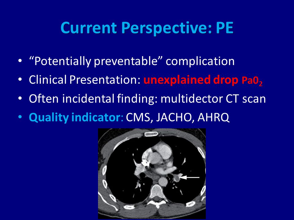 Current Perspective: PE Potentially preventable complication Clinical Presentation: unexplained drop Pa0 2 Often incidental finding: multidector CT scan Quality indicator: CMS, JACHO, AHRQ