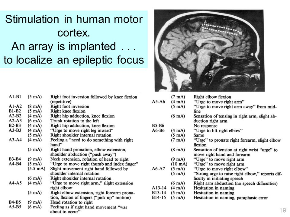 19 Stimulation in human motor cortex. An array is implanted... to localize an epileptic focus