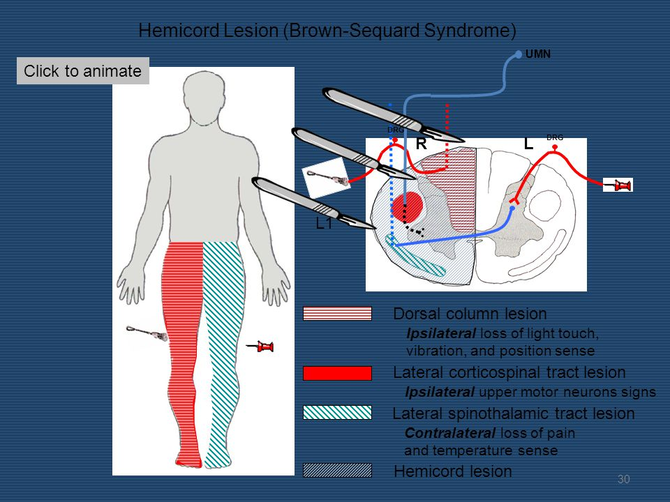 RL Hemicord Lesion (Brown-Sequard Syndrome) Dorsal column lesion Ipsilateral loss of light touch, vibration, and position sense Lateral corticospinal tract lesion Ipsilateral upper motor neurons signs Lateral spinothalamic tract lesion Contralateral loss of pain and temperature sense Hemicord lesion Build the lesion L1 Common causes include penetrating injuries, lateral compression from tumors, and MS.