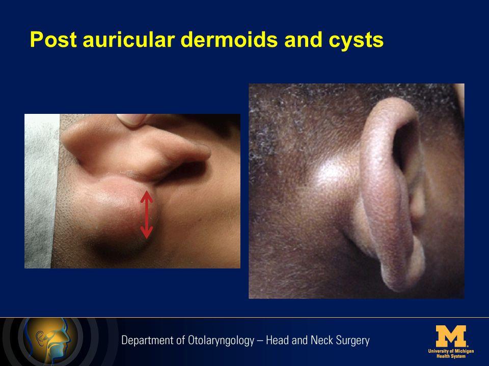 Postauricular Lymph Nodes Drainage basin from scalp, ear and temporoparietal areas.