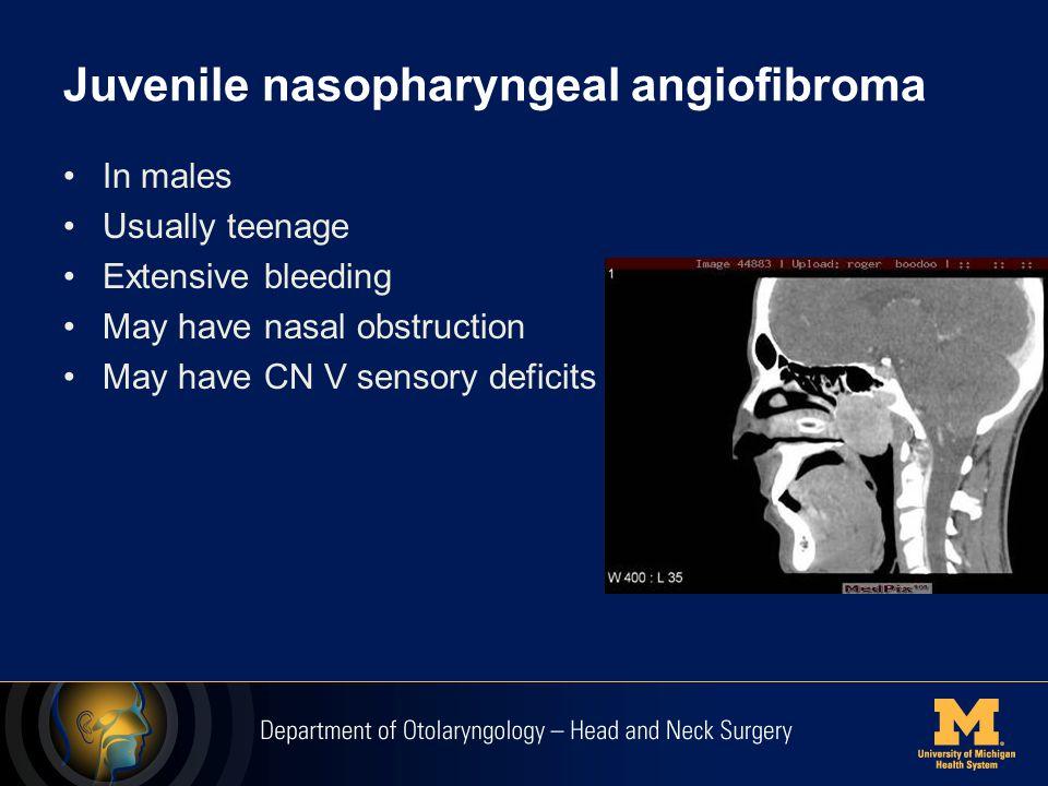Congenital Nasal Masses- Dermoid
