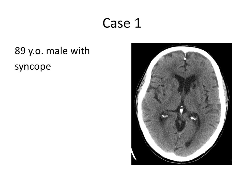 Case 1 89 y.o. male with syncope