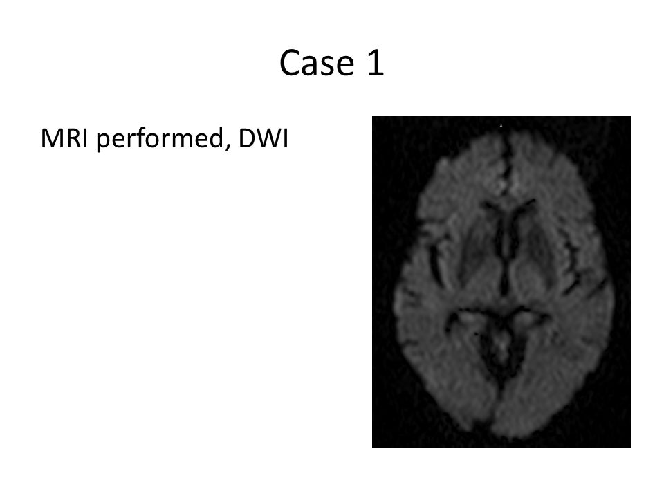 Case 1 MRI performed, DWI