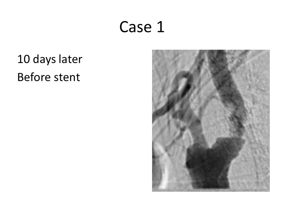 Case 1 10 days later Before stent