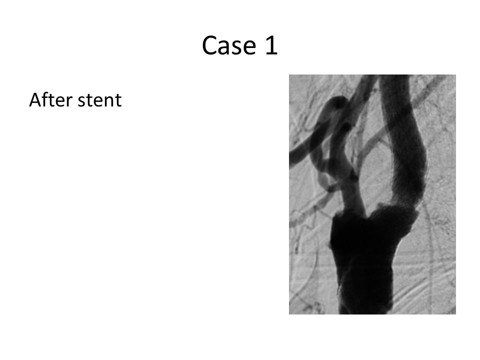 Case 1 After stent