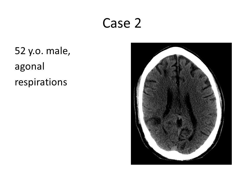 Case 2 52 y.o. male, agonal respirations