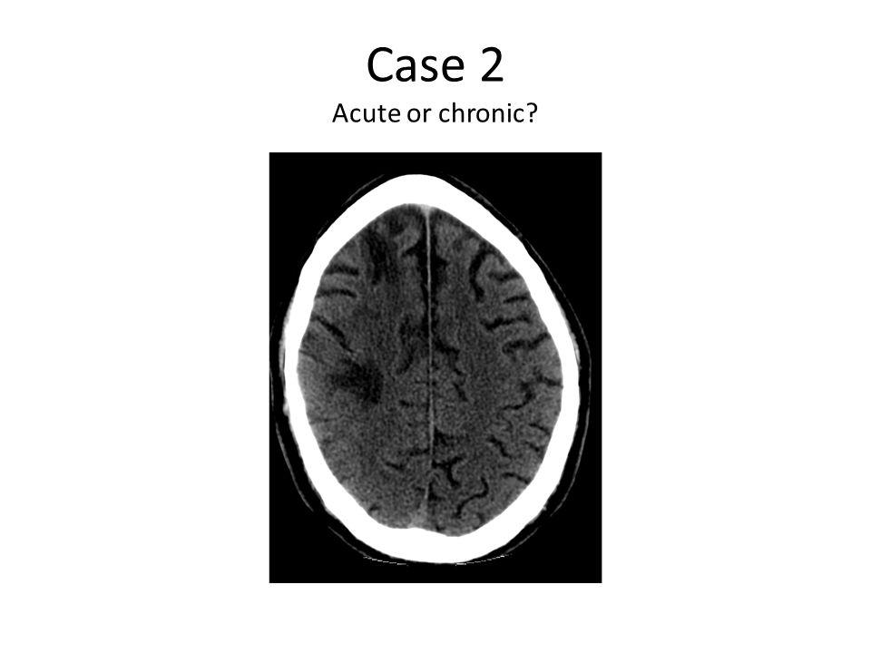 Case 2 Acute or chronic