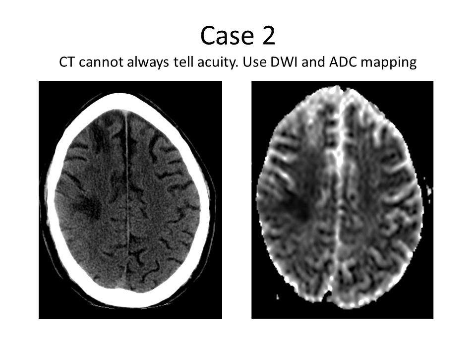 Case 2 CT cannot always tell acuity. Use DWI and ADC mapping
