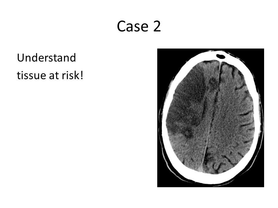 Case 2 Understand tissue at risk!