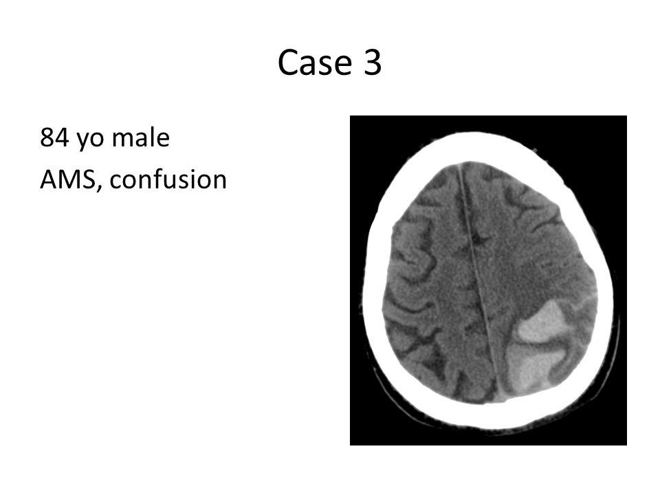 Case 3 84 yo male AMS, confusion