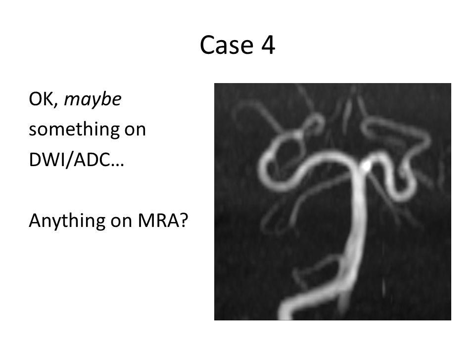 OK, maybe something on DWI/ADC… Anything on MRA