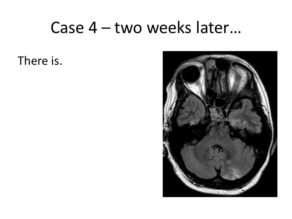 Case 4 – two weeks later… There is.