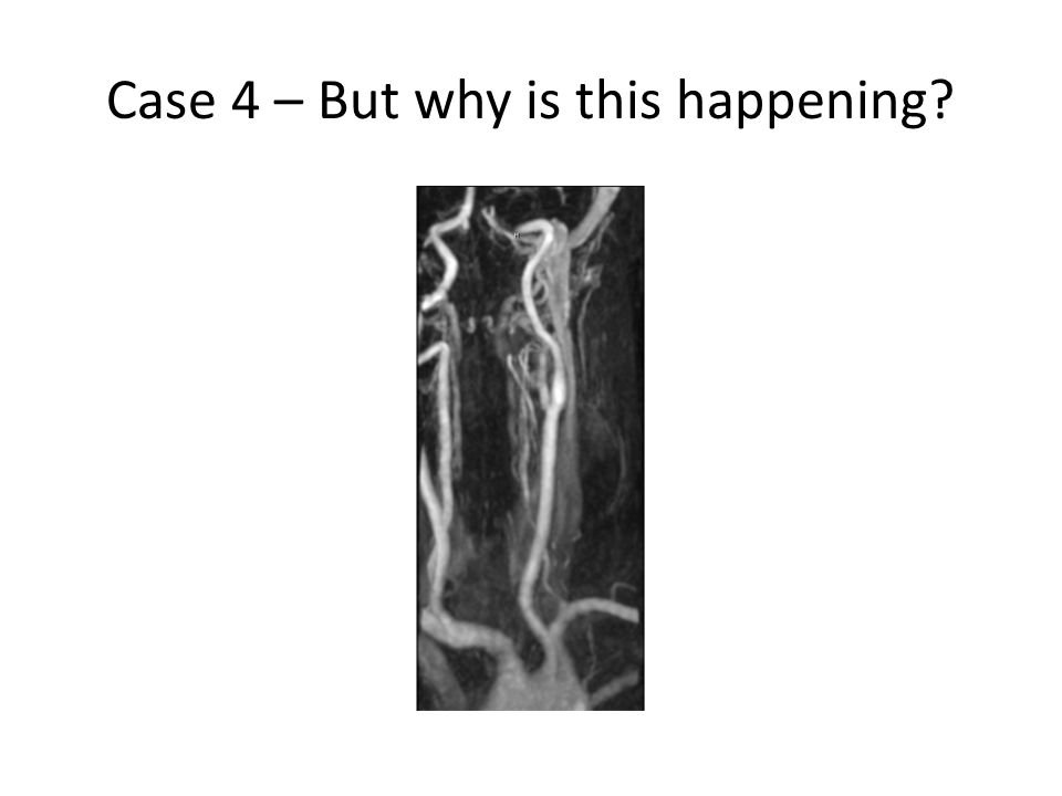 Case 4 – But why is this happening?