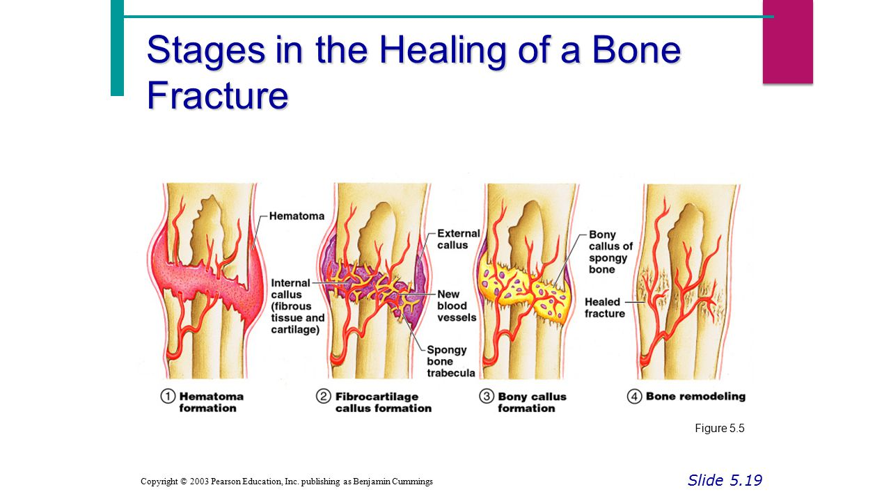 Stages in the Healing of a Bone Fracture Slide 5.19 Copyright © 2003 Pearson Education, Inc.