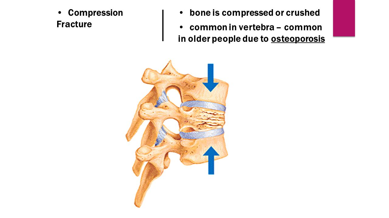 Compression Fracture bone is compressed or crushed common in vertebra – common in older people due to osteoporosis