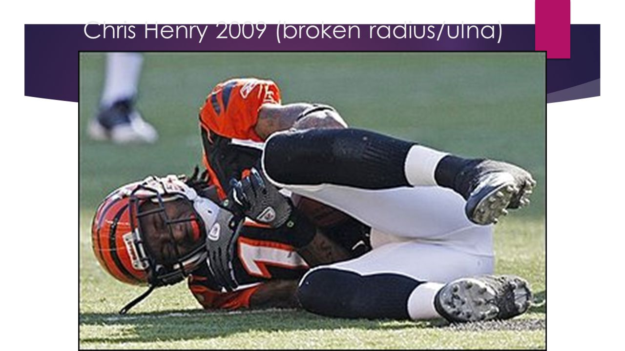 Chris Henry 2009 (broken radius/ulna)