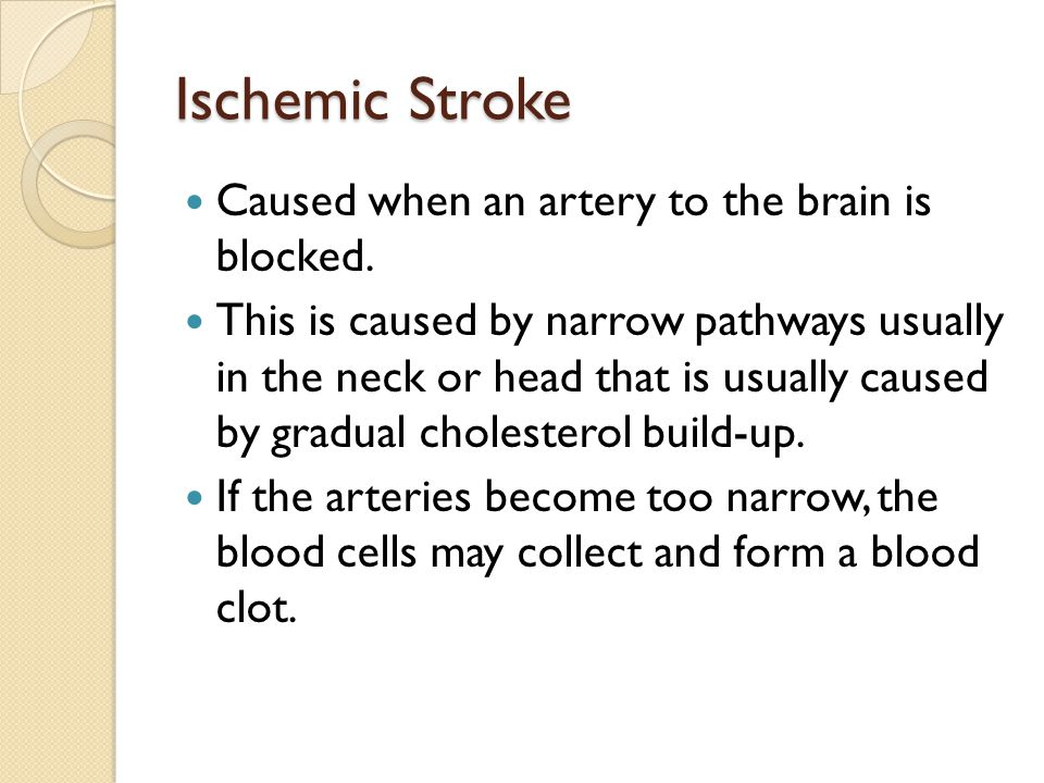 Ischemic Stroke Caused when an artery to the brain is blocked.