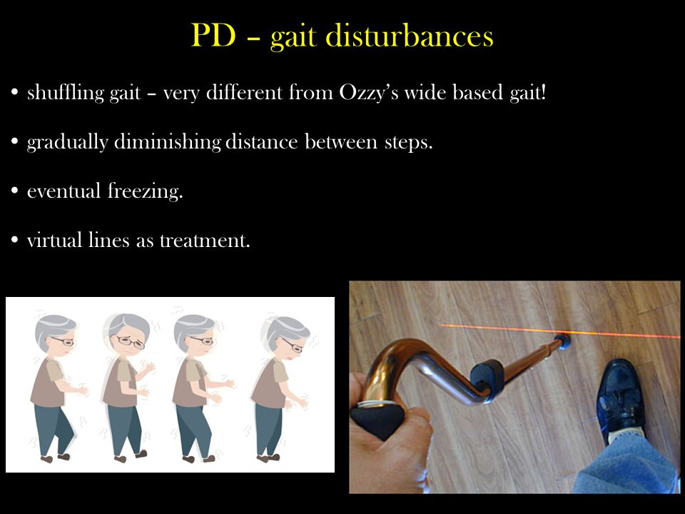 PD – gait disturbances shuffling gait – very different from Ozzy's wide based gait.