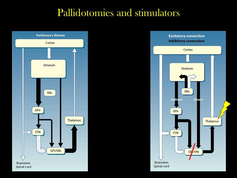 Pallidotomies and stimulators