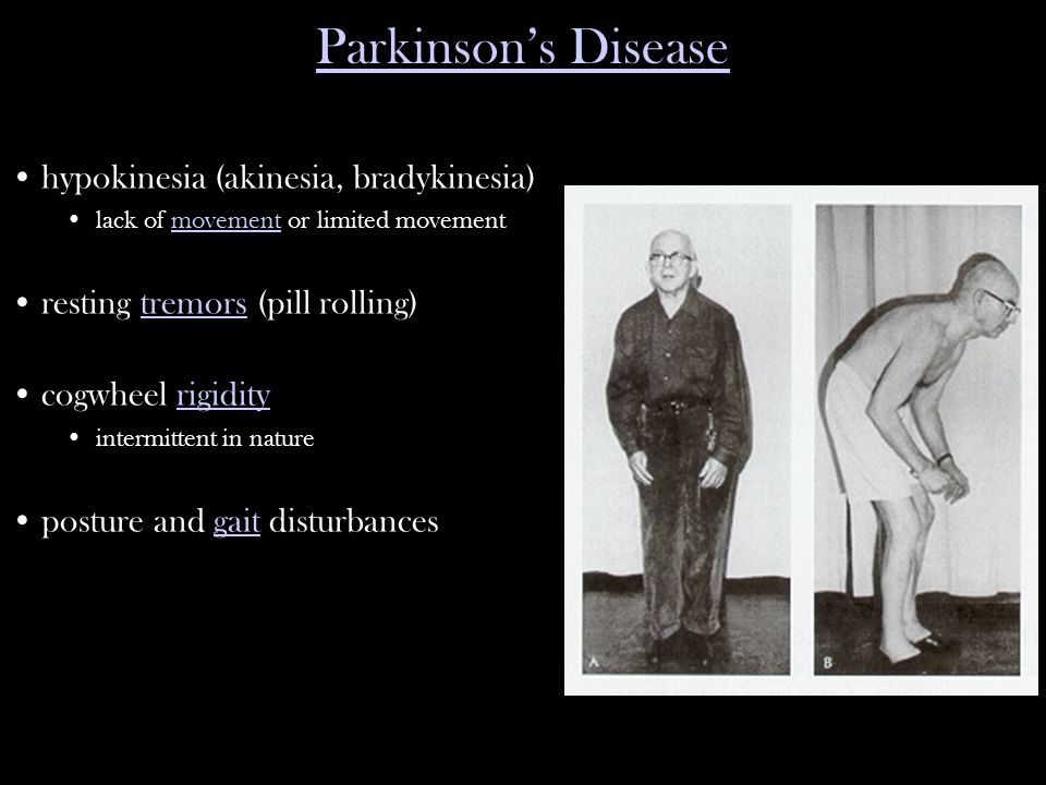 hypokinesia (akinesia, bradykinesia) lack of movement or limited movementmovement resting tremors (pill rolling)tremors cogwheel rigidityrigidity intermittent in nature posture and gait disturbancesgait