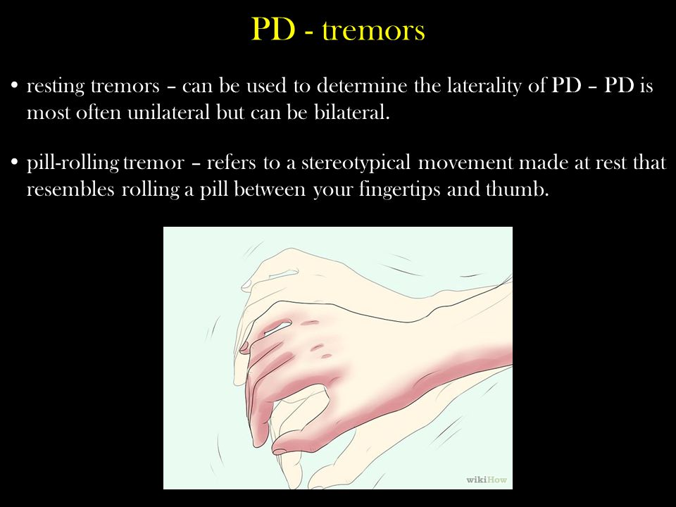 PD - tremors resting tremors – can be used to determine the laterality of PD – PD is most often unilateral but can be bilateral.