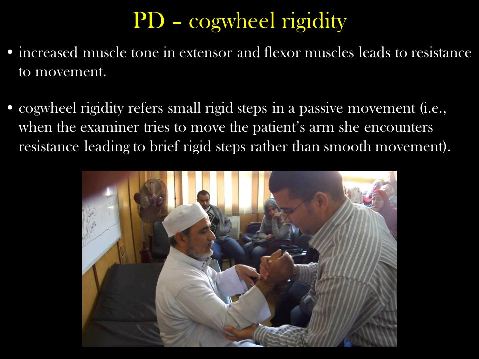 PD – cogwheel rigidity increased muscle tone in extensor and flexor muscles leads to resistance to movement.